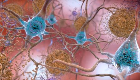 Investigadores analizan los procesos de la enfermedad de Alzheimer con luz de sincotrón