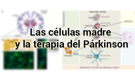Las células madre y la terapia del Párkinson