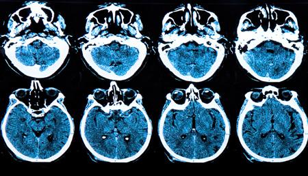 Un análisis de sangre para detectar el alzheimer con 16 años de antelación