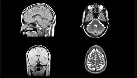Encuentran un interruptor químico que puede disminuir los síntomas de la esquizofrenia