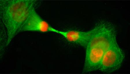 ¿Cómo las células cancerosas adquieren resistencia al tratamiento?
