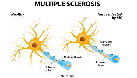Investigadores desvelan posibles nuevas pistas sobre el origen y progresión de la esclerosis múltiple