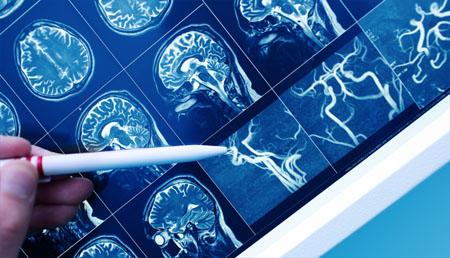 El cambio en un solo aminoácido: causa de un mejor pronóstico en pacientes de ictus isquémico
