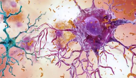 Las características de la enfermedad de Alzheimer varían según el paciente