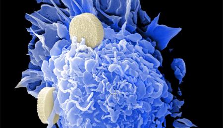 Nanoterapia contra el rechazo de los trasplantes
