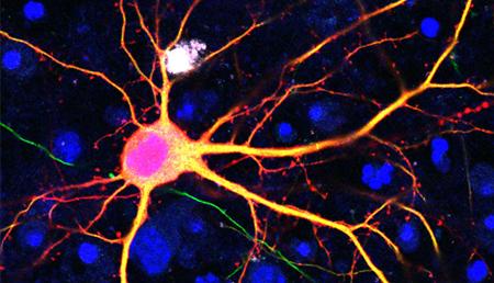 Investigadores amplían el rango de mutaciones que se pueden corregir con fines terapéuticos