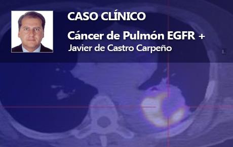 Cáncer de Pulmón EGFR +